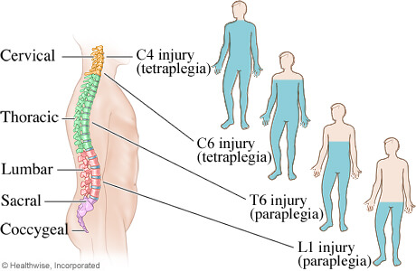 Understanding Spinal Cord Injuries