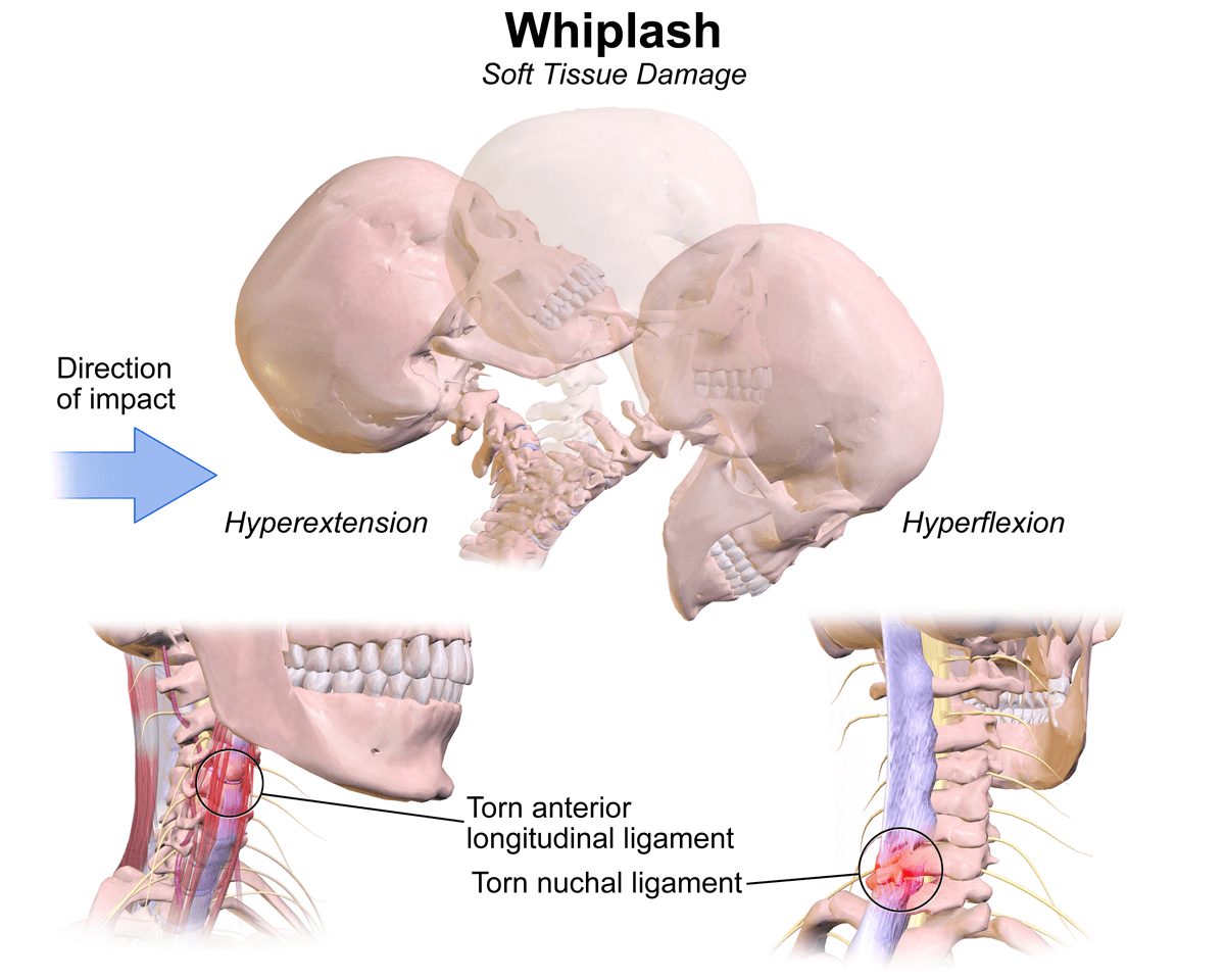 What Do I Do if I Think I Have Whiplash?